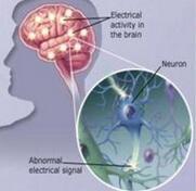 癫痫病的发病原因